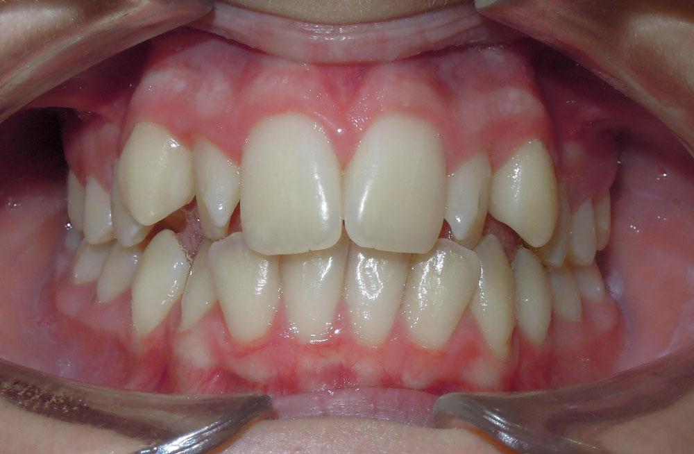 Ortodoncia invisible en Pinto y Ciempozuelos, salud oral