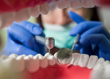 Endodoncia en Pinto