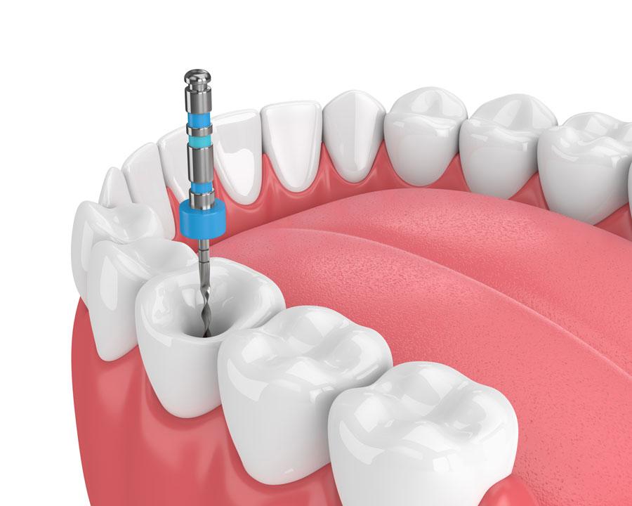 endodoncia en Pinto y Ciempozuelos, endodoncia avanzada en Pinto y Ciempozuelos, salud oral