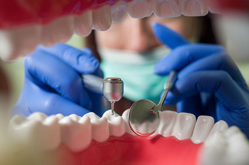 endodoncia en Pinto y Ciempozuelos, endodoncia avanzada en Pinto y Ciempozuelos, salud oral.