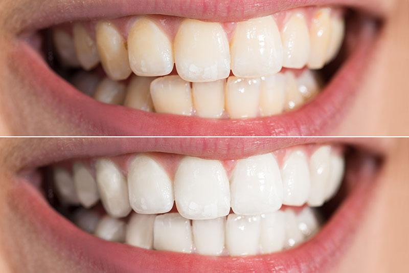 Estética dental en Pinto y Ciempozuelos, blanqueamiento dental en Pinto, carillas dentales en Pinto.