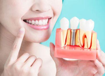 Implantes Dentales en Pinto