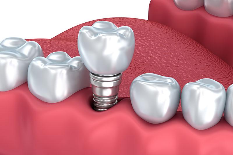 implantología en Pinto y Ciempozuelos, salud oral