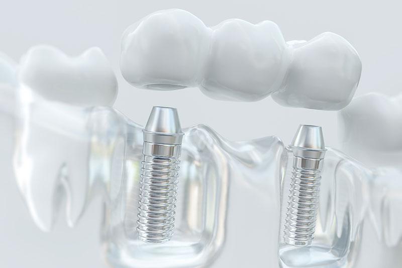 Estética dental en Pinto y Ciempozuelos, blanqueamiento dental en Pinto, carillas dentales en Pinto, implantología en Pinto y Ciempozuelos, salud oral