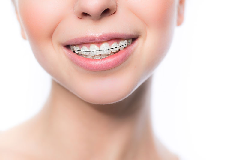 Ortodoncia en Pinto y Ciempozuelos