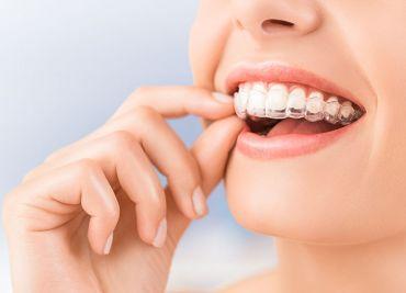 Ortodoncia invisible en Pinto