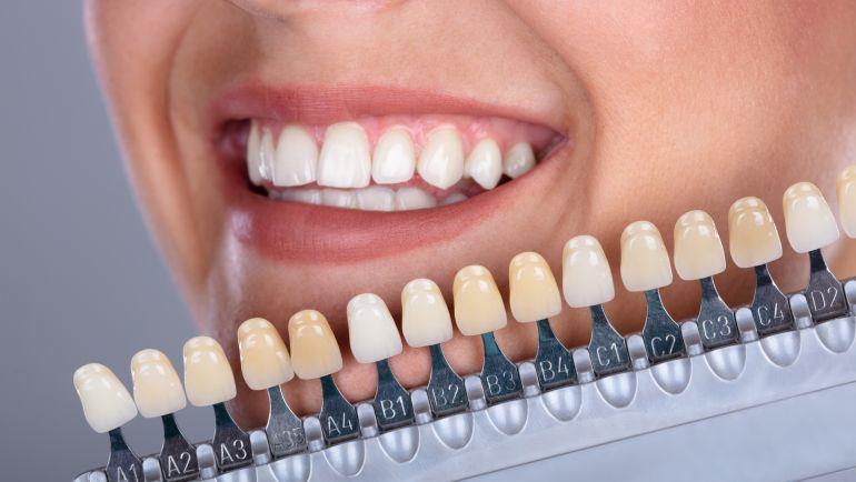 ¡Conoce los tipos de carillas dentales que existen!
