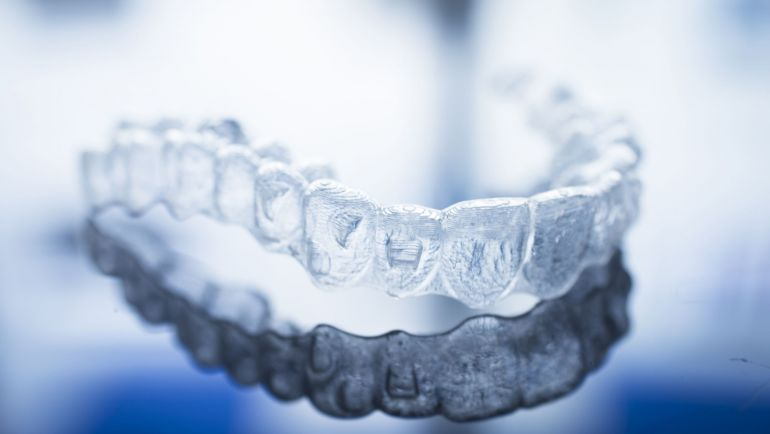 Las 4 ventajas de la Ortodoncia Invisible que necesitabas conocer